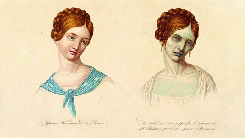 Health Woman with Cholera